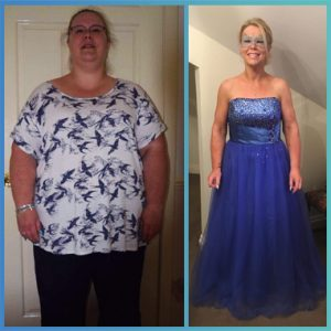 Weight Loss Surgery Free Consultations London Surrey And Sussex